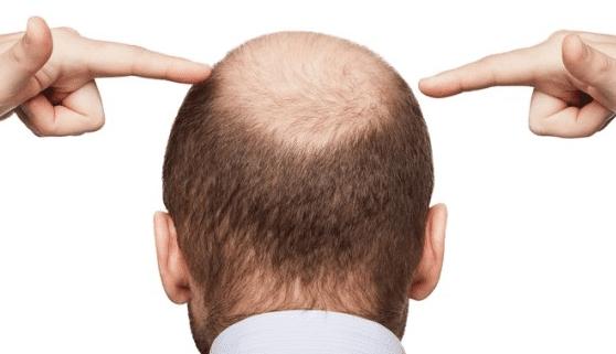 saç ekımı