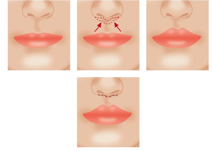 lip lift