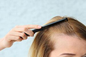 alın-daraltma-saç-ekimi-