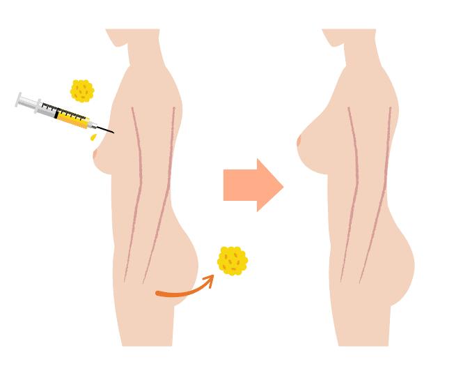 yağ enjeksıyon